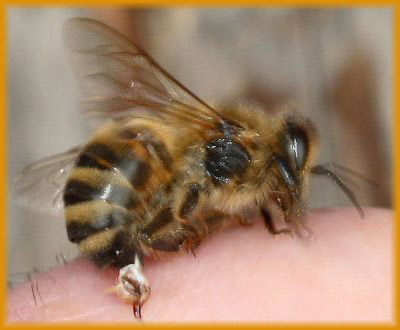 A Bee Stinging